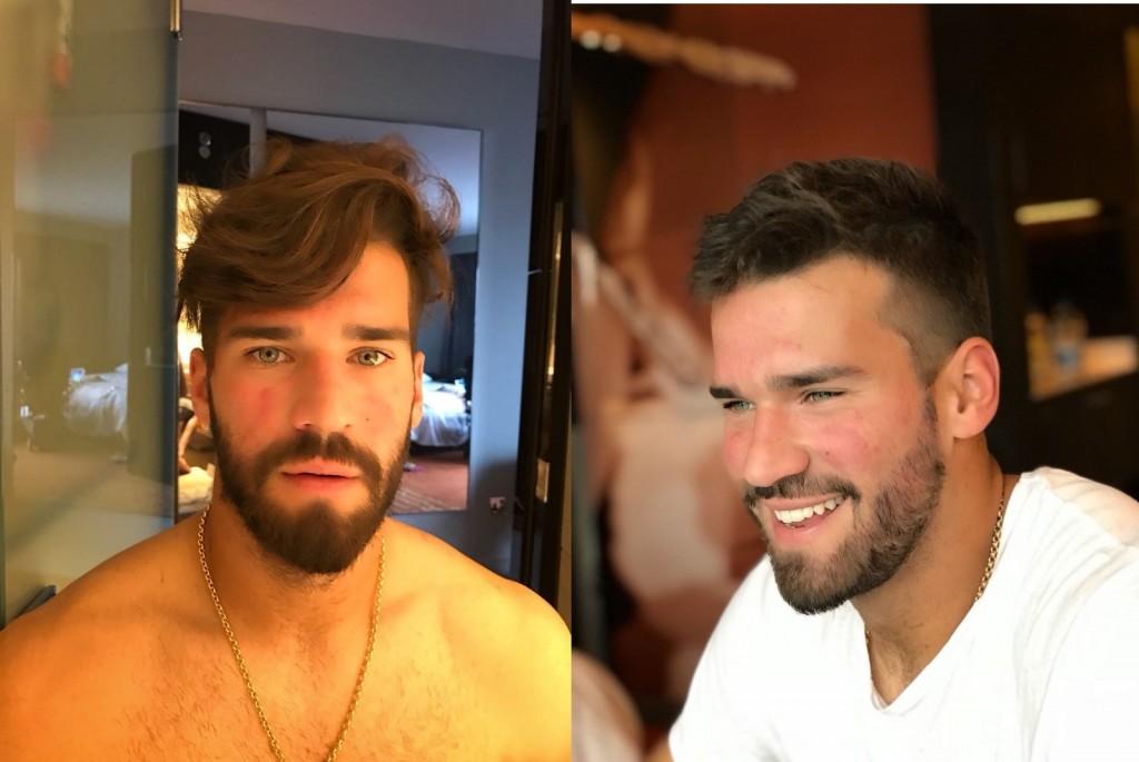 Foto: Antes e depois do trato para a Copa